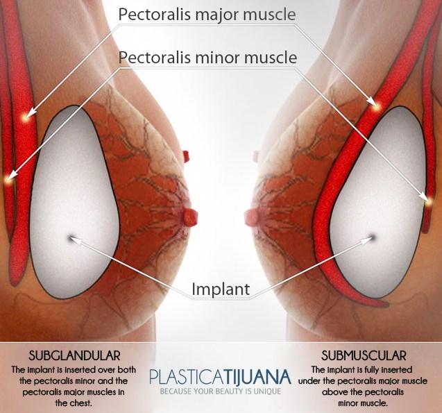 implantes mamarios plástica Tijuana