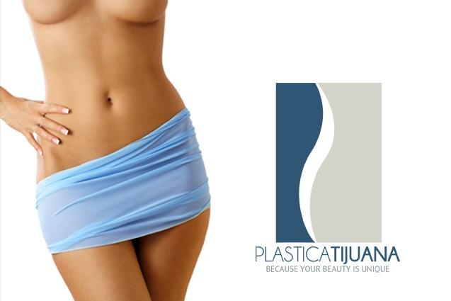 abdominoplasty54ef