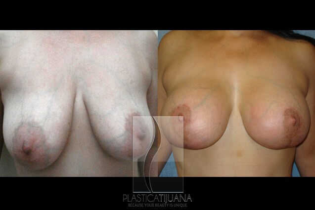 breastAugmentation4a154ef