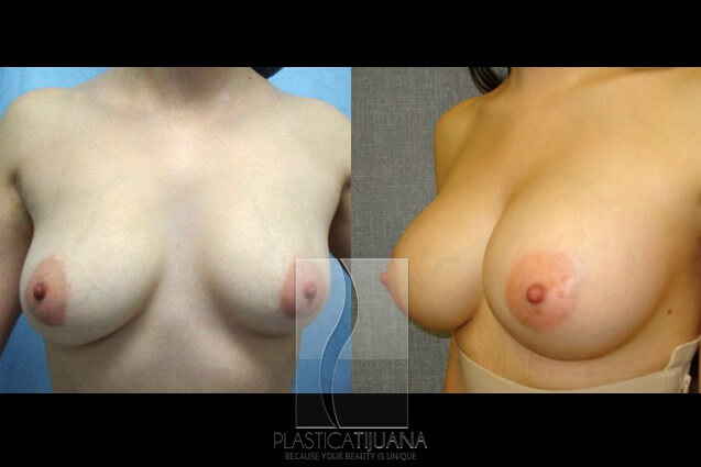 breastAugmentation5a54ef