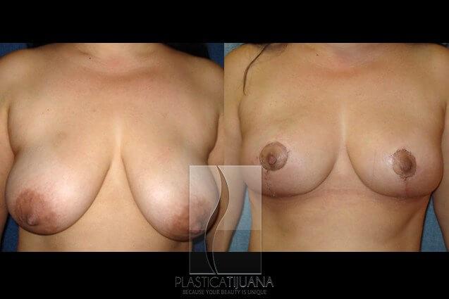 breastLif3a54ef
