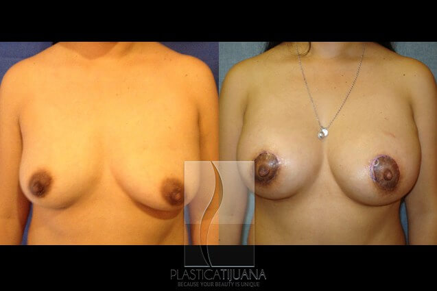 breastLift2a54ef