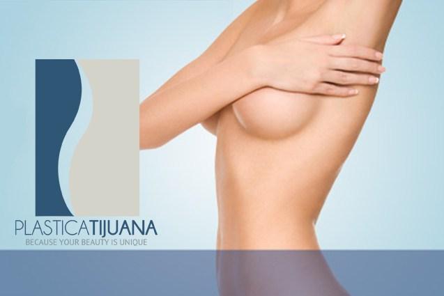 breast augmentation surgery plastica tijuana