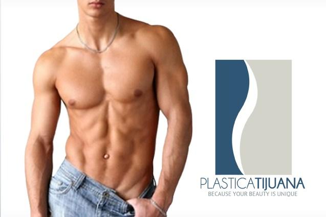 gynecomastia Surgery plastica tijuana