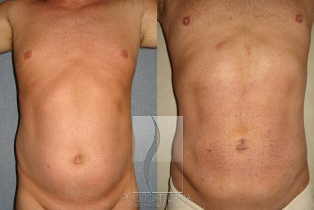 liposuction54ef