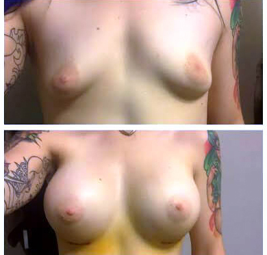 pt-breast-augmentation