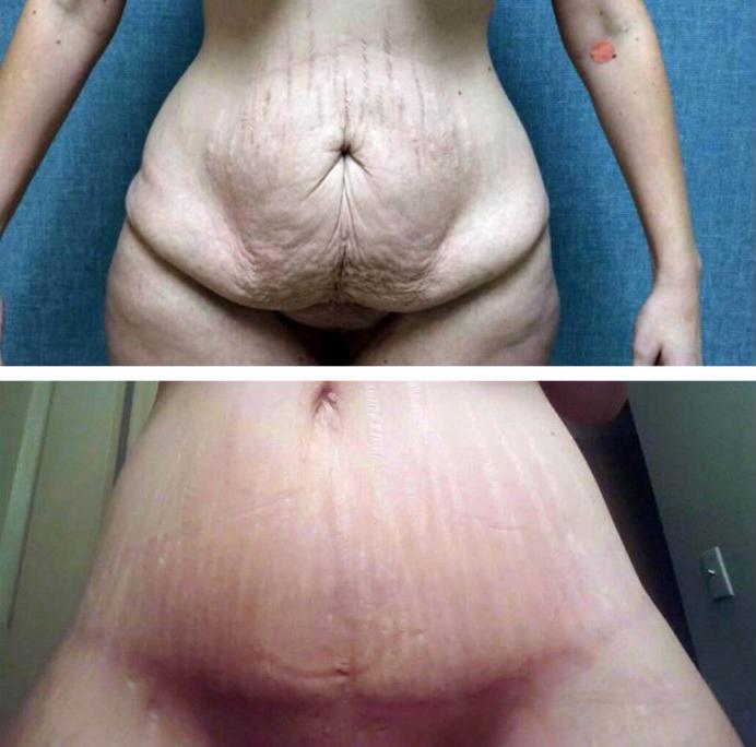pt-tummy-tuck1
